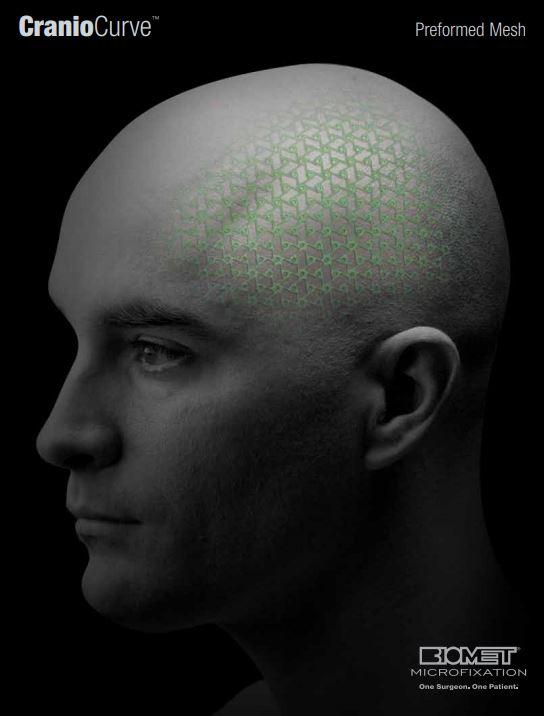 CranioCurve® Preformed Mesh image