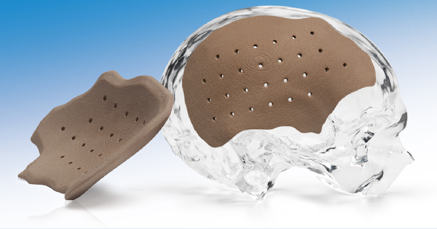 HTR-PEKK Patient-Matched Cranial Implant image cover