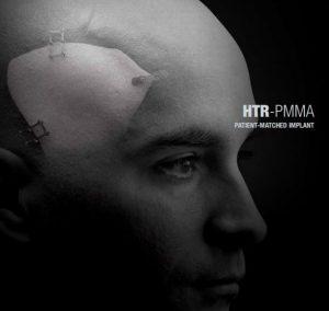 HTR-PMMA image cover
