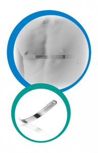 Pectus Support Bar image cover