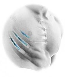 RibFix Blu™ image cover