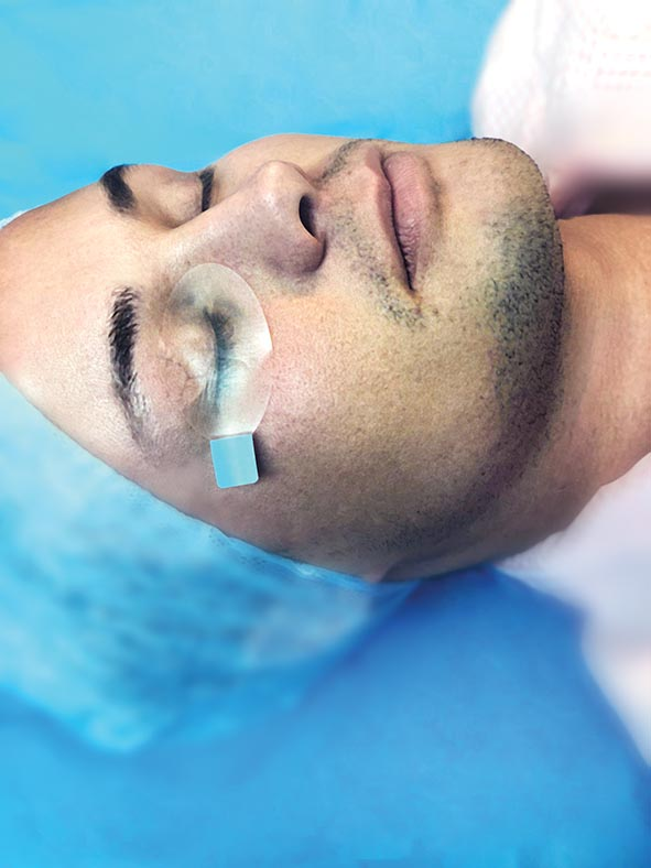 iPRO SKINTACT® Eye Protector image
